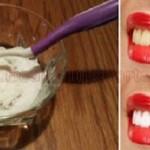 Olvidate de dentista, una forma sencilla de blanquear tus dientes en casa!