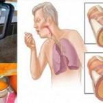 Las zanahorias pueden calmar la tos y flema de pulmones
