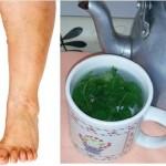 Este té: el mejor remedio para hinchazón de tobillos y piernas