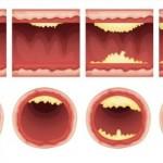 Alimentos que ayudan a destapar arterias y prevenir ataques al corazon