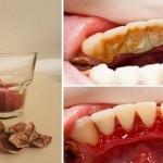 Destruye la placa de los dientes con un ingrediente natural