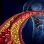 Limpie las arterias y prevenga enfermedades más graves!