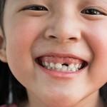 Asombroso descubrimiento: vas a querer guardar todos sus dientes!