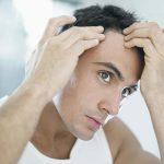 Caída del cabello? Dígale adiós con estos 2 ingredientes