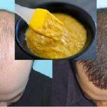 Esta mascara le ayudara a tratar la pérdida de cabello