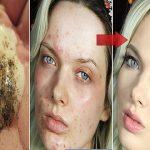 Las marcas de acne desaparecen con ayuda de estos ingredientes