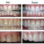 Te natural que Elimina la placa de los dientes … Increíble!