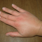 Seis síntomas de la retención de líquidos. Soluciónelo ya