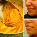crema casera contra las marcas de acne e inflamacion de la piel