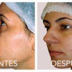 Nueva manera natural de deshacerse de los molestos vellos faciales