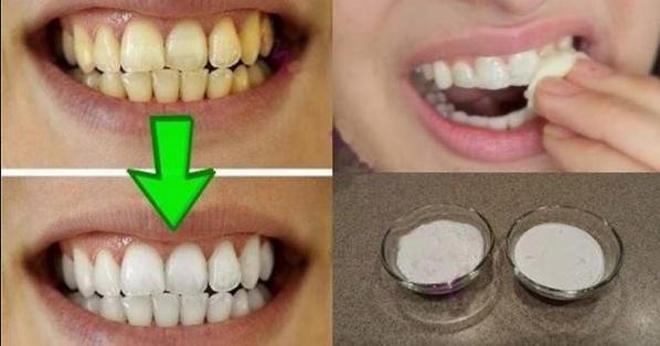 truco para blanquear los dientes
