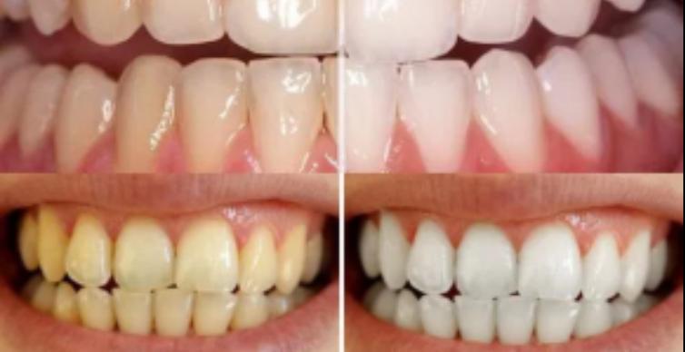 blanqueador casero - blanquee sus dientes facilmente