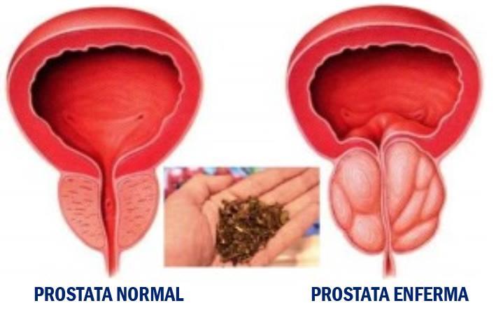 Tratamiento natural para el cancer de prostata
