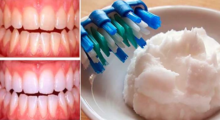 Esta pasta dental casera puede eliminar el mal aliento y blanquear los dientes