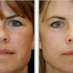 Los problemas de la piel ya no lo serán con este remedio natural