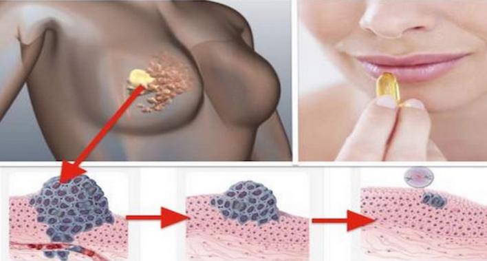 el crecimiento del cáncer se detiene con esta vitamina