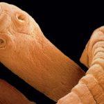 La teniasis puede aparecer en su cuerpo si consume esta comida