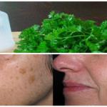 Las hojas de perejil le pueden ayudar a tratar con los problemas de la piel