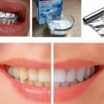 Esto es lo que sucede cuando envuelves tus dientes con aluminio… Increíble!