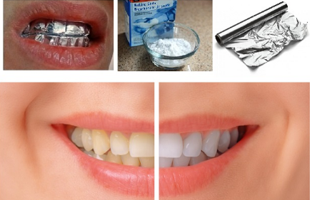 blanquear los dientes con aluminio