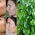 Las arrugas, el acné y las manchas se desaparecen con la ayuda de esto