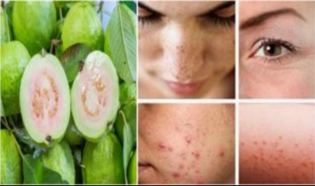 las hojas de guayaba combaten las imperfecciones del rostro