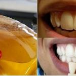 Los dentistas no quieren que esto salga a la luz. Pues es el método más rápido y seguro para blanquear los dientes