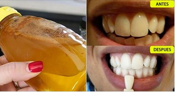 receta que blanquea dientes que no quiere ser revelada por los dentistas