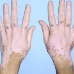 El vitiligo son manchas blancas… Elimínelas con estos remedios naturales
