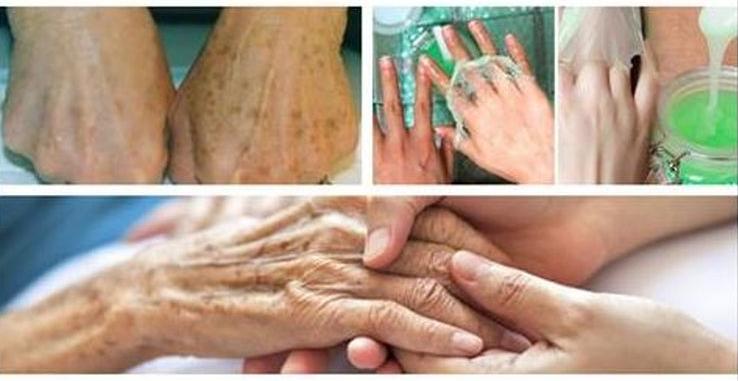 Elimine las manchas en la piel con ayuda de estas recetas caseras. Son faciles de hacer y muy efectivas.