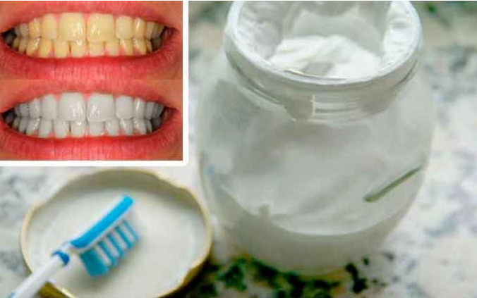 Olvidate del mal aliento, el sarro y la placa con esta crema blanqueadora de dientes casera; lo mejor es que no es muy dificil de preparar