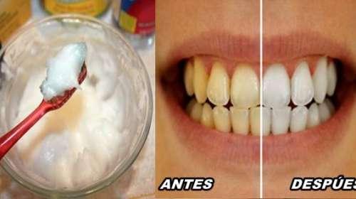 Hoy le presentamos la mejor receta para el blanqueamiento de los dientes hecho con ingredientes que podrás hallar en casa