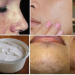 Jabón casero que elimina las manchas del rostro en tan sólo 5 días de uso