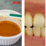 Blanquear los dientes amarillos en 5 minutos, sin ir al dentista es posible con ayuda de esta receta casera