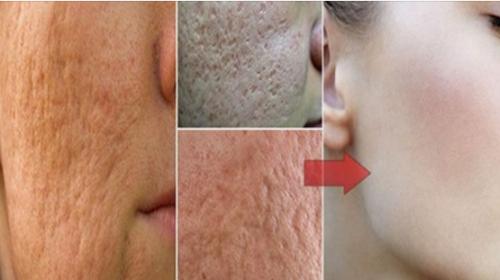 Elimine los poros de la cara con tan sólo 1 ingrediente que hallarás en casa