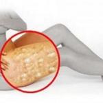 La celulitis ya no será más un problema para las chicas, pues con esta receta casera lo combatirán