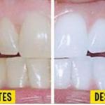 Usando tan sólo 3 ingredientes que hallarás en casa, tus dientes quedarán blancos como la nieve