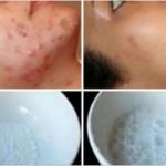 Las arrugas, manchas y cicatrices se borrarán en 48 horas con ayuda de esta receta