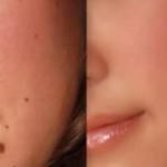 Solución natural para acabar con las verrugas, lunares y espinillas