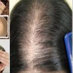 Añade estos ingredientes a tu champú y olvídate de la caída del cabello