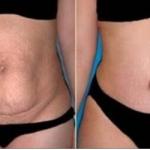 Esta receta se usa por 10 minutos, una vez al día y en 20 días reducirá la grasa del vientre