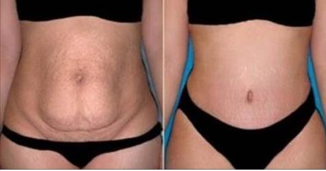 Esta receta se usa por 10 minutos, una vez al día y en 20 días se reduce la grasa del vientre