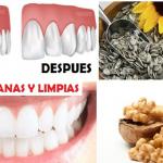 Remedios caseros para acabar con la placa dental en tan solo 5 minutos