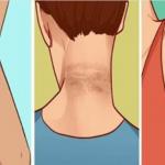 Desaparece las manchas oscuras del cuello, axilas y muslos en tan solo 15 minutos