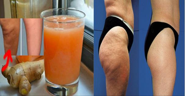 Toma esta bebida en ayunas para exterminar la celulitis, la grasa de la barriga, muslos y piernas