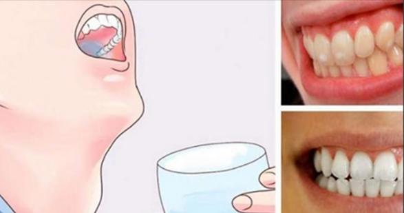 Enjuaga tu boca durante 1 minuto con esta receta y eliminarás el sarro y la placa y hasta blanquearás tus dientes