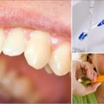5 remedios caseros que te ayudarán a eliminar el sarro de los dientes y mantener una sonrisa hermosa