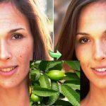Ella eliminó el acné, las manchas y las arrugas de su rostro tan sólo utilizando estas hojas