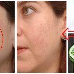 Ella frota aloe vera en su rostro y los resultados son impresionantes, te enseñaremos a usarlo