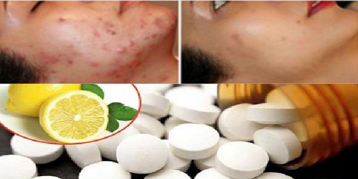 Con la ayuda de esto lograrás eliminar todas las manchas, el acné e incluso las arrugas